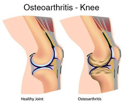 osteoarthritis victoria bc