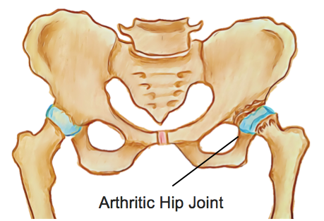 osteoarthritis hip physiotherapy victoria bc