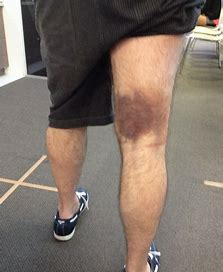 pulled hamstring victoria bc
