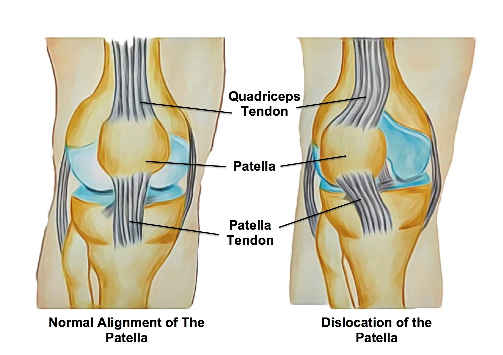 2f38e133c3 Knee Patella Dislocation Victoria BC