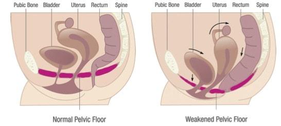 Pelvic Floor Physiotherapy Victoria BC