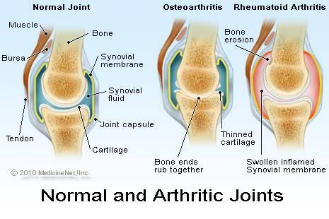 arthritis victoria bc shelbourne physio